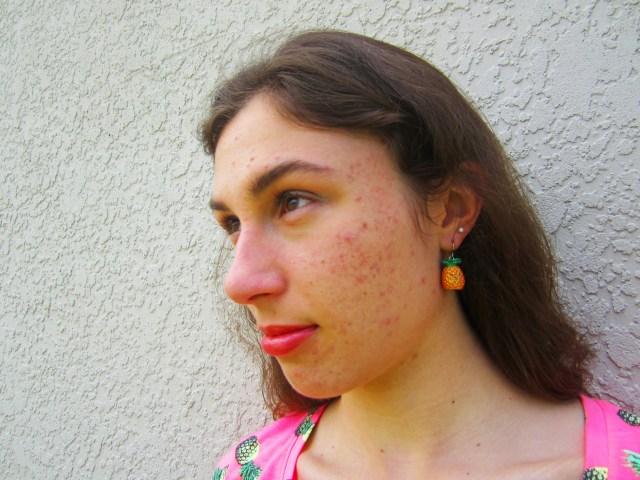 Pineapple Girl // Ashlee Craft