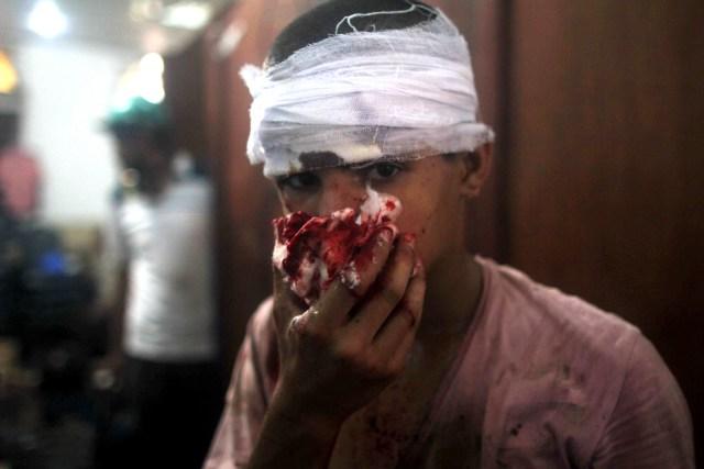 Egitto Cairo bambini feriti uccisi