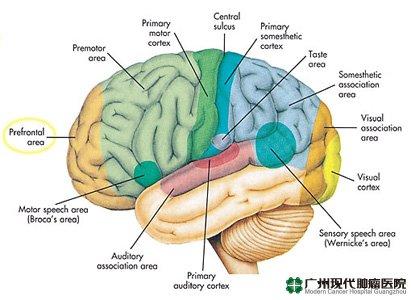 Kanker otak