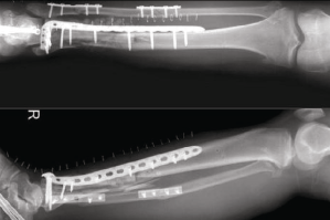 Medical Bone Fracture Application