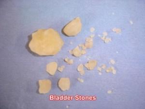 bladder-stones-removed-dog