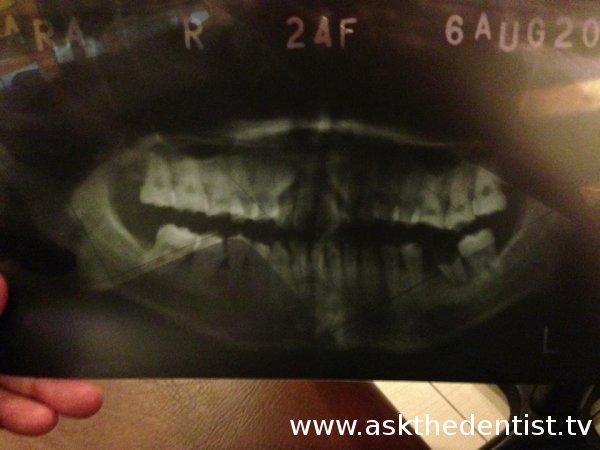 X-ray na malabong malabo