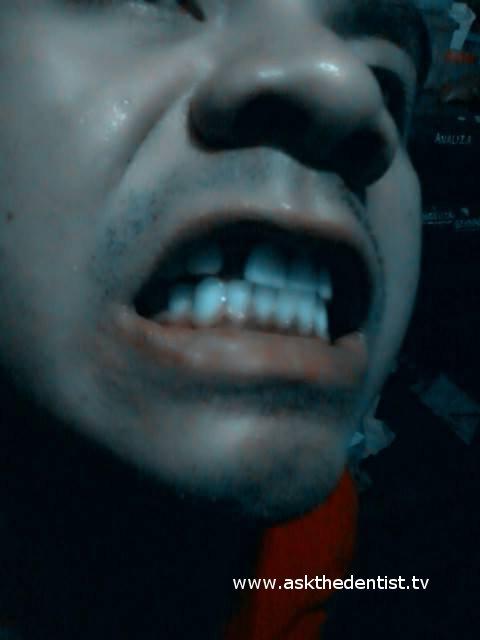 Ayaw sa Dentures