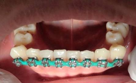 Effect of DIY Braces