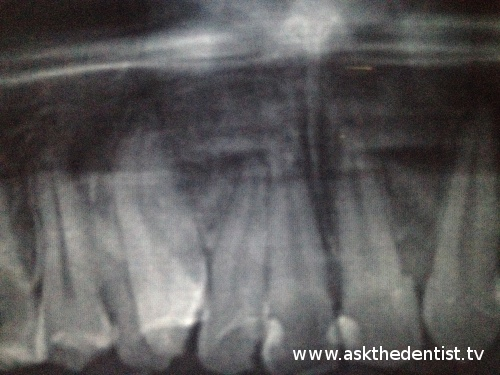Periapical infection sa lateral incisor.