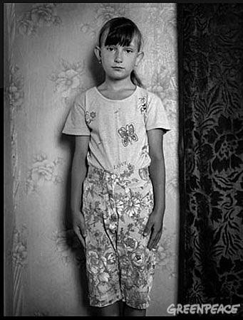 Nastya, de Belarus sólo tenía tres años cuando se le diagnosticó cáncer de útero y de pulmones