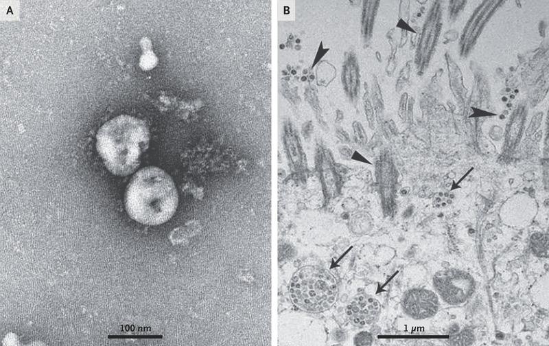 Coronavirus MEB