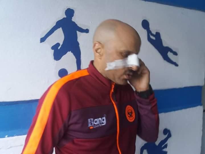 مدرب نهضة بركان يتعرض للضرب من طرف لاعب تونسي !