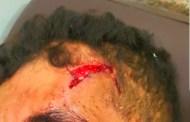 خمس رصاصات لإيقاف شخص في حالة هيجان بسيدي بنور