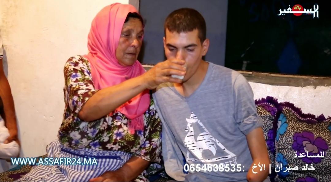 مؤثر..حادث خطير يحول حياة شاب لجحيم وعائلته تناشد وزير الصحة لمساعدته