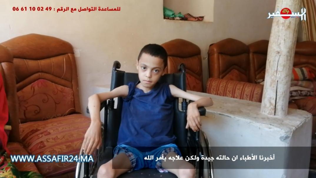 من دوار ألوس بعمالة تحناوت.. الطفل إسماعيل يناشد وزير الصحة من أجل علاجه