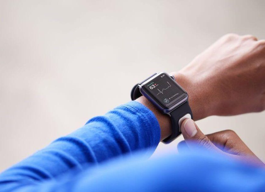 KardiaBand is the Apple Watch band that can run EKGs and detect irregular heartbeats