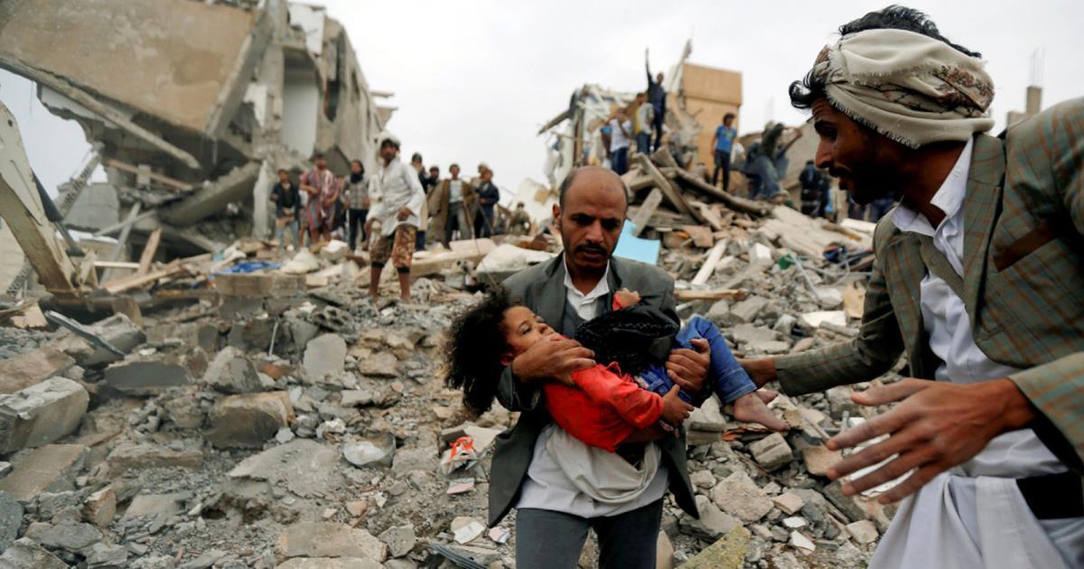 الحربُ في اليمن يجب أن تنتهي