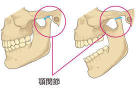 顎関節症のセルフケアPart2【大阪市都島区内の歯医者|アスヒカル歯科】