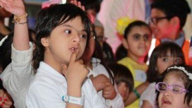 """Photo of طبيبة اختصاصية: أطفال """"متلازمة داون"""" من أكثر الفئات تضررًا من كورونا"""