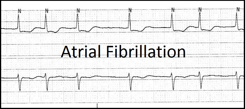 atrial fibrillation essay This essay will review the recent advances and outcomes of ablation of atrial  atrial fibrillation constitutes a heavy burden on healthcare expenditure due to.