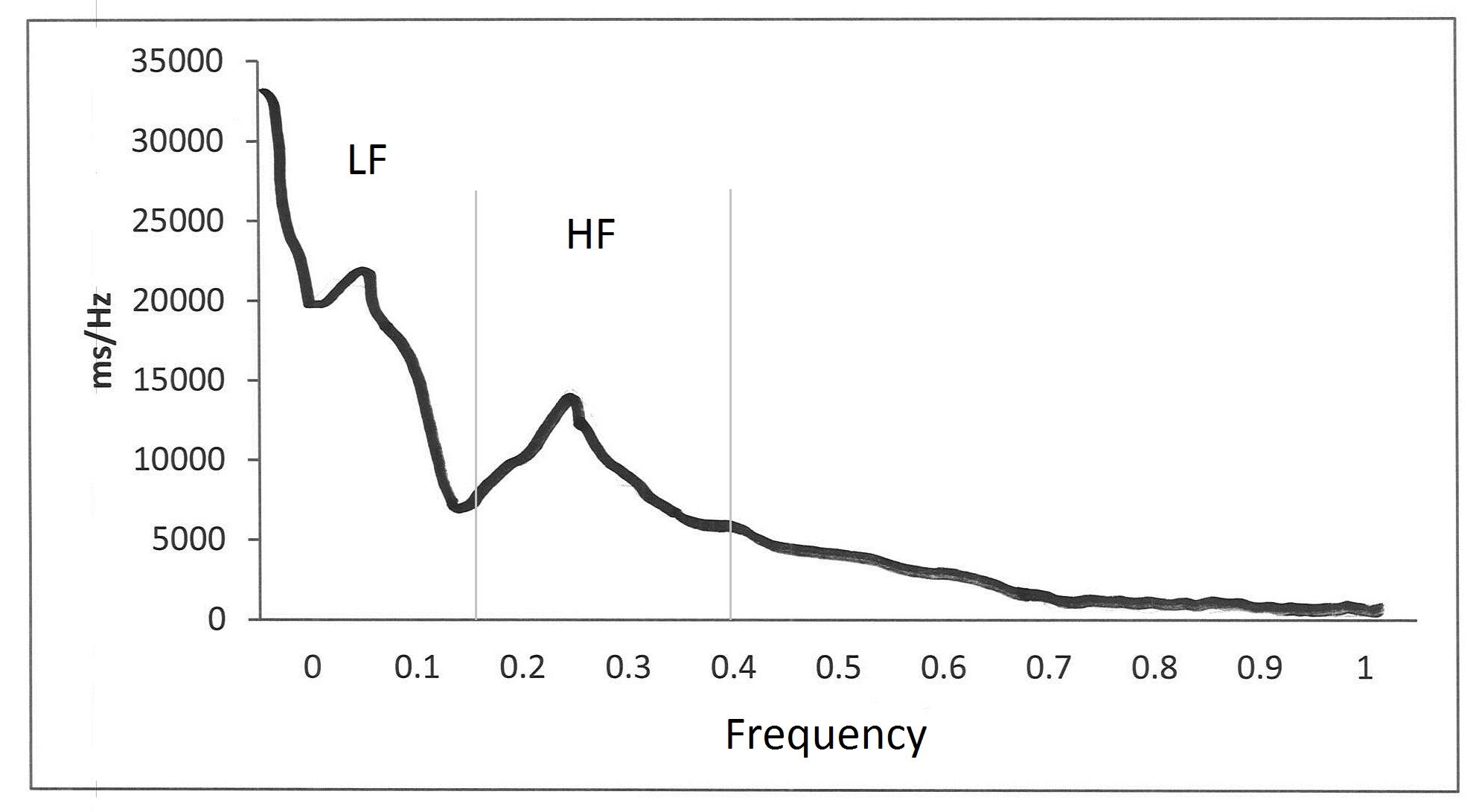 Heart Rate Variability: The Basics