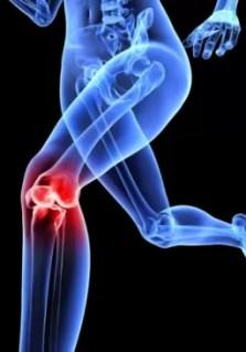 knee x ray image 012511 resized 2