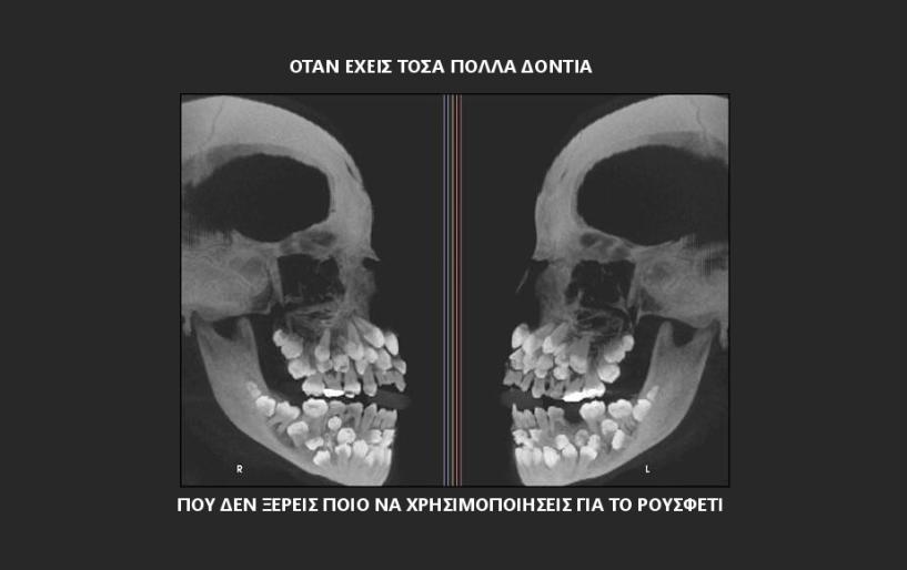 Έχω δόντι