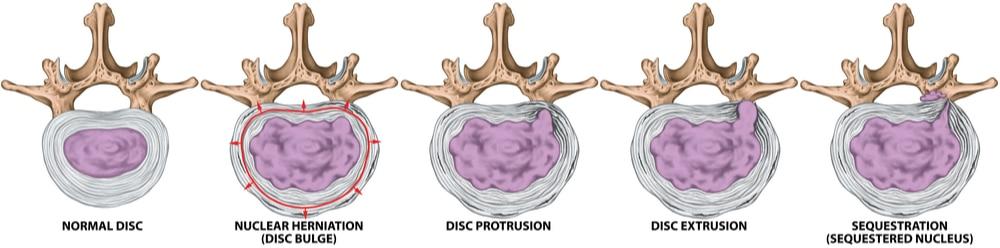 Evolution dégénérative d'un disque intervertébral