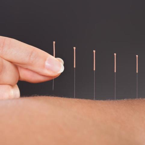 Lessening Knee Replacement Pain Through Dry Needling
