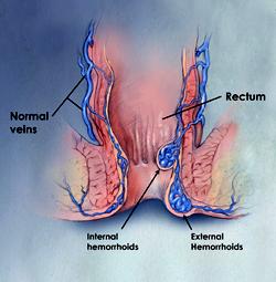 Hemorrhoids - Atlanta Gastroenterology Associates