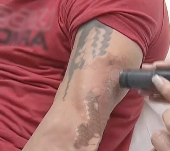 togliere il tatuaggio definitivamente  con il laser
