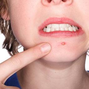 Auburn Dermatology acne treatment