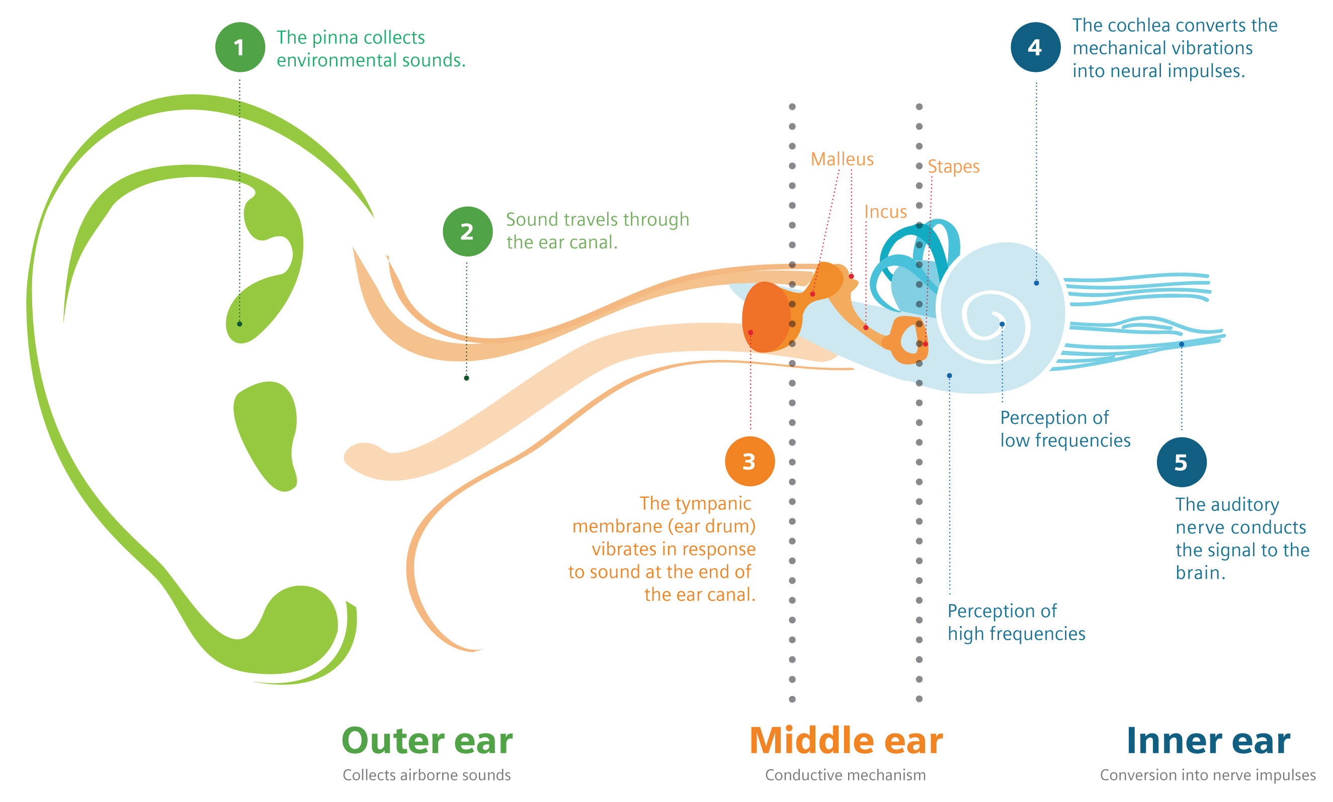 About Hearing Loss