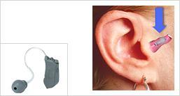 Les écouteurs dans le conduit auditif