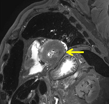 Peracute myocardial infarction in postmortem MRI
