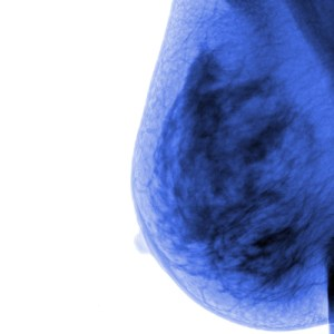 How important are years in breast cancer risk assessment?