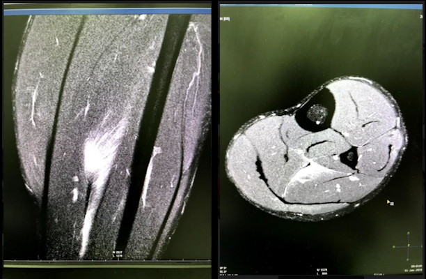 MRI plays an essential role in imaging football injuries