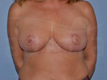 View our latest before and after photos of breast reduction surgery