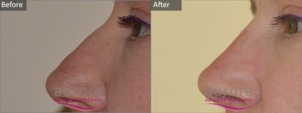 Aurora Skin Clinics: Photo showing Before and After Non-Surgical Nose Job