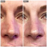 Before and After Photo of Non-Surgical Nose Reshaping