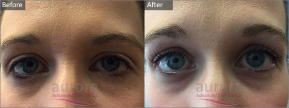 Aurora Skin Clinic Before and After Photograph of LVL Lashes