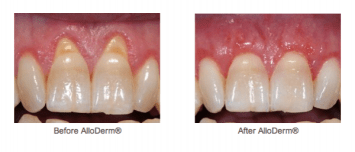 Gum -Surgery -Receding- Gums- Before- After- Picture