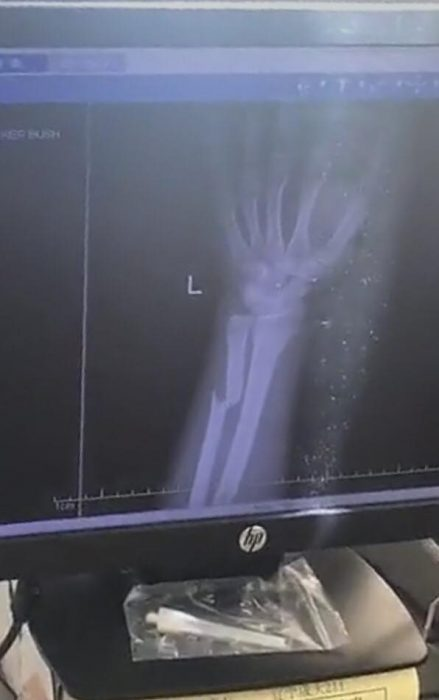 broken arm nightstick fracture