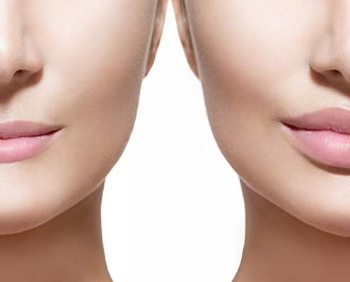 Are lip fillers any good?