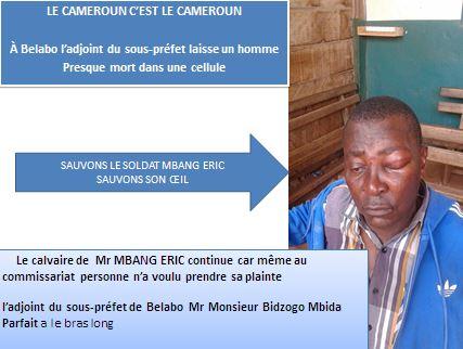 BELABO- EST CAMEROUN / L'adjoint de sous-préfet frappe un homme et le laisse à demi mort dans une cellule