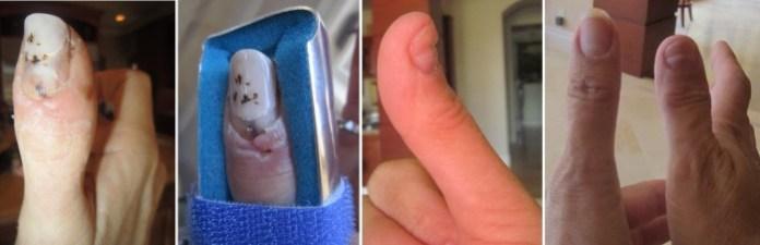 bentley finger