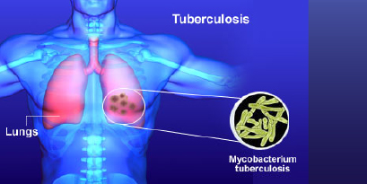 TUBERCULOSIS TREATMENT IN DELHI