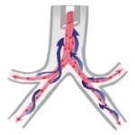 endobronchial-laser