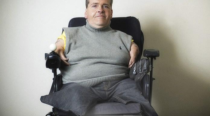 Resultado de búsqueda talidomida contergan Freddie Astbury, Presidente Thalidomide UK
