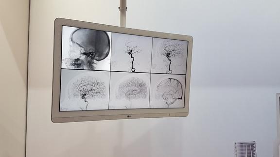 תערוכת MEDICA – כל חידושי הטכנולוגיה בעולם הרפואה