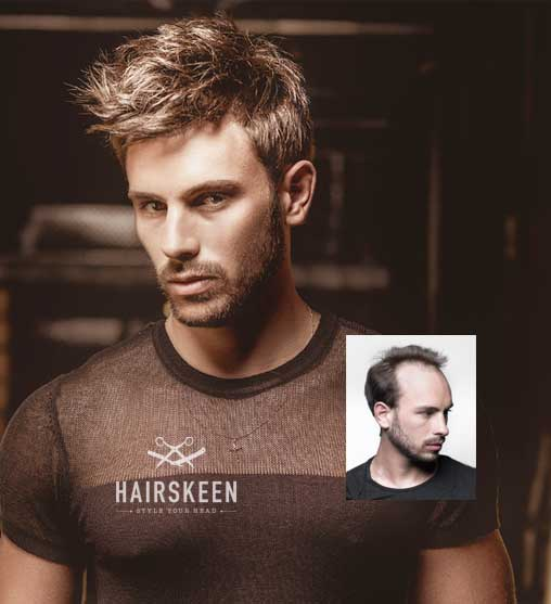 Hairskeen mens hair replacement madison wisconsin