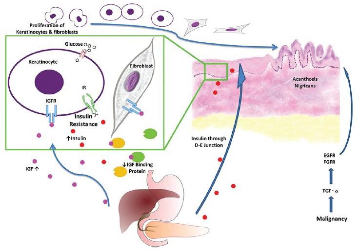 Acanthosis Nigricans | What Causes Dark Armpit Skin | Natural Deodorant Myth | Awake Organics | UK Beauty Brand Brand | diagram image.jpg