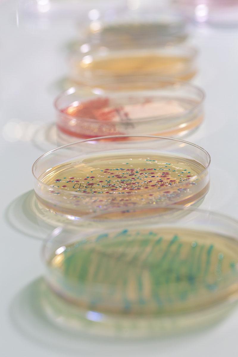 Culture de bactérie