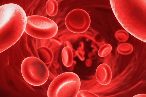 What is Anemia and why should you care?